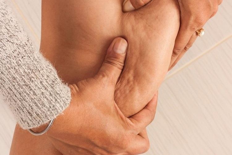 تجمع چربی  یا سلولیت Cellulitis را بیشتر بشناسیم