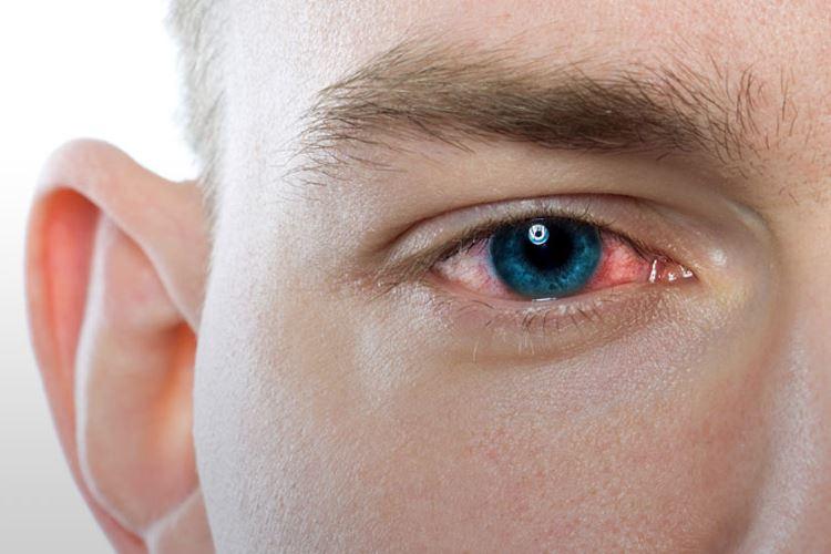 هشت نوع عفونت چشم و روشهای درمان آنها
