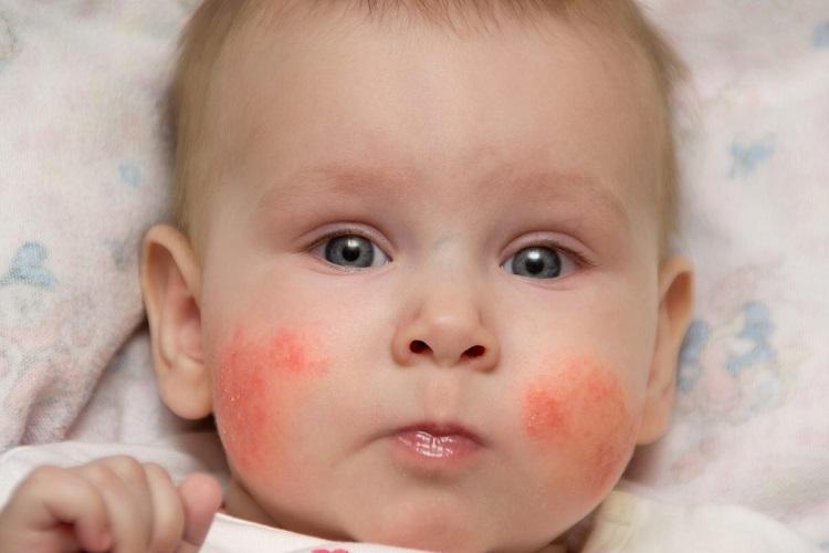 آنچه که باید درباره درماتیت، التهاب پوستی یا اگزما بدانید