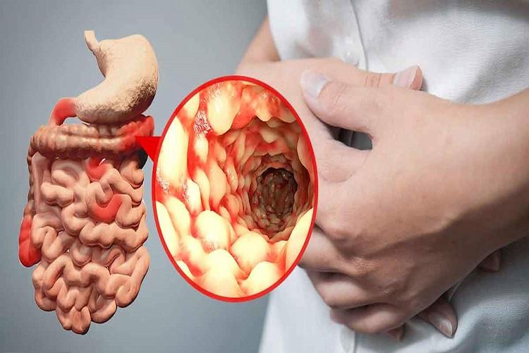 بیماری کرون چیست و چه علائمی دارد؟