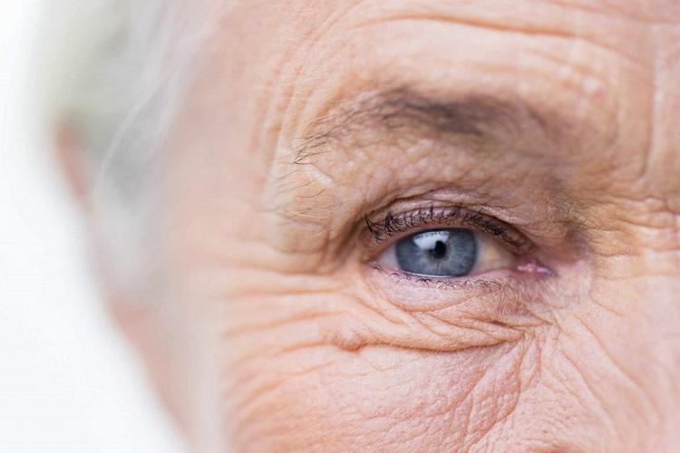پیرچشمی Presbyopia چیست؟