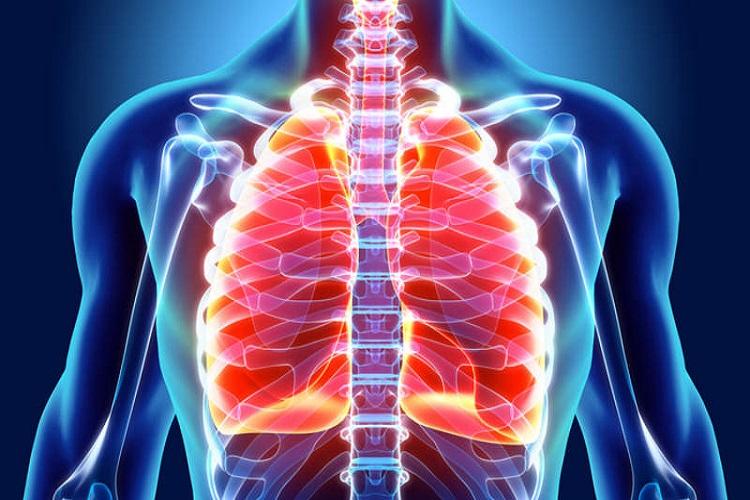 درباره فیبروز ریه Pulmonary fibrosis چه میدانید؟