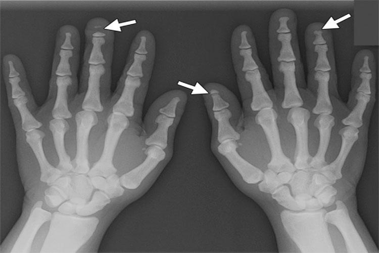 راشیتیسم یا نرمی استخوان چیست؟ به همراه علائم، عوامل تاثیرگذار، تشخیص و راههای درمانی