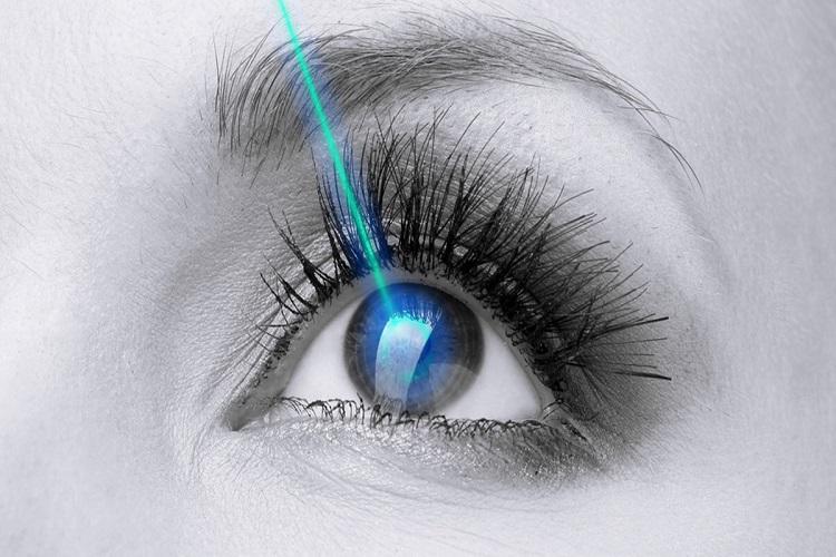 همه چیز درباره جراحی لیزیک LASIK چشم