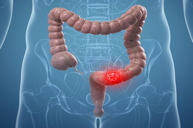 از سرطان کولون و روده بزرگ چه میدانید؟ آشنایی با علائم و روشهای پیشگیری از آن
