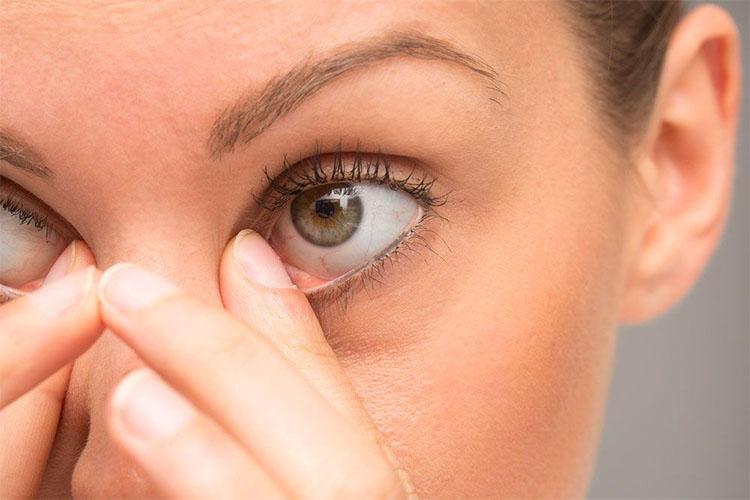 درمان خانگی التهاب پلک و مژه
