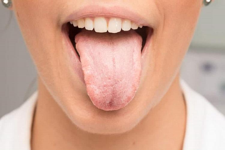چرا به خشکی دهان دچار میشویم و چطور باید در این شرایط بزاق دهان را کنترل کنیم