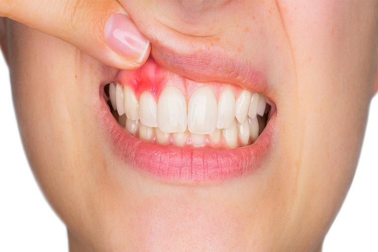 آبسه دندان Tooth abscess را جدی بگیرید