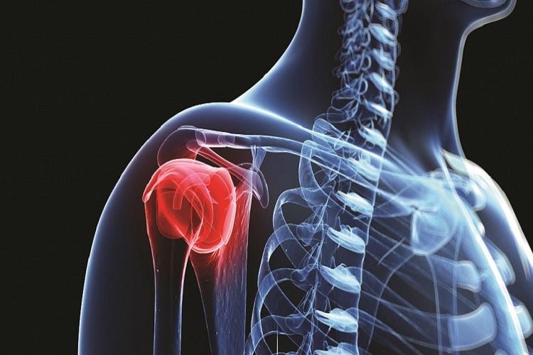 علائم و راههای درمان سرطان استخوان به همراه معرفی داروی جدید سرطان مغز استخوان