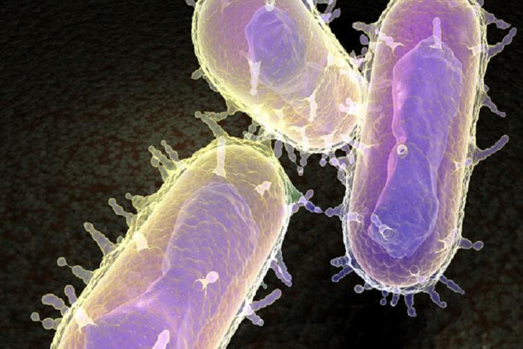 بیماری طاعون Plague، از علائم تا راههای درمان
