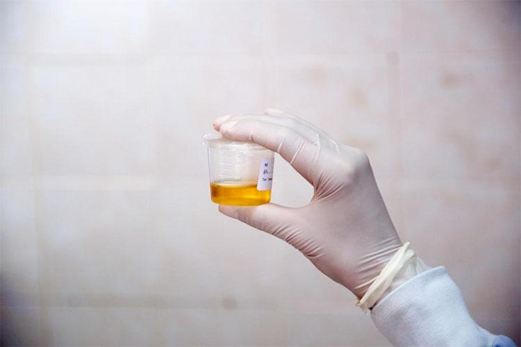 آزمایش ادرار چه کاربردی دارد و چه بیماریهایی را نشان میدهد؟