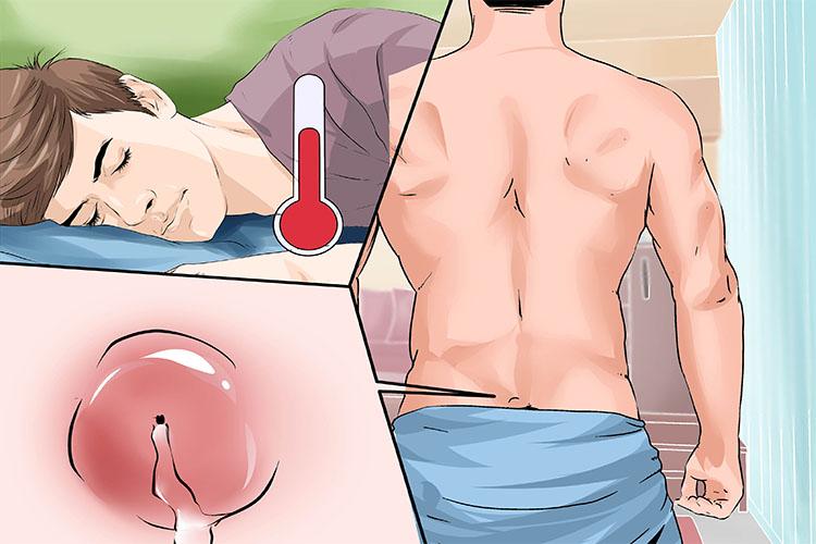 آشنایی با علائم و روشهای درمان کیست مویی یا پیلونیدال