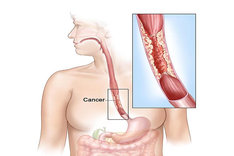 آشنایی با روشهای درمانی سرطان مری