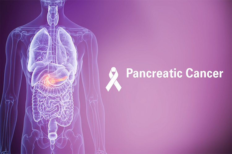 سرطان پانکراس یا لوزالمعده چیست و چطور باید آن را درمان کرد؟