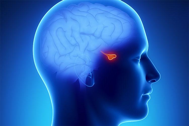 آشنایی با تومورهای هیپوفیز و تاثیر آن بر سلامتی بدن به همراه روشهای درمانی