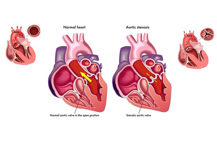 تنگی دریچه آئورت قلب چیست و چطور آن درمان را کنیم