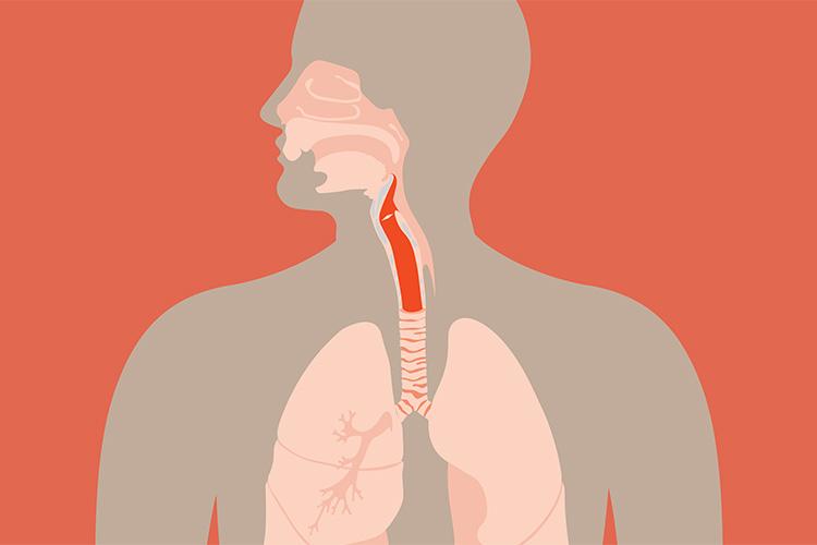 آشنایی با سرطان حنجره، از تشخیص تا مراقبتهای لازم برای جلوگیری از تشدید علائم