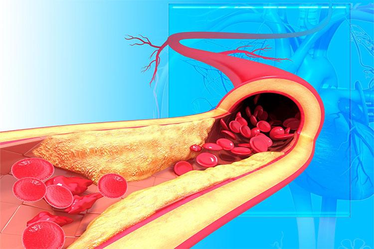 بیماری آرتریواسکلروز (Arteriosclerosis) چیست و چگونه درمان میشود؟