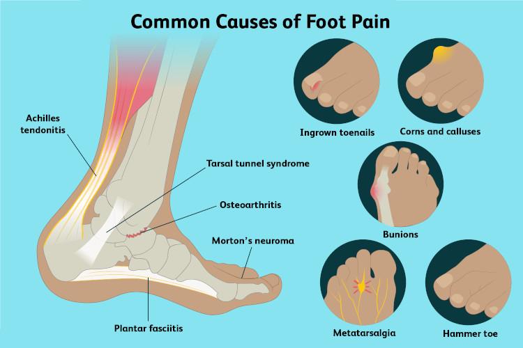 بررسی و درمان خانگی انواع درد پا