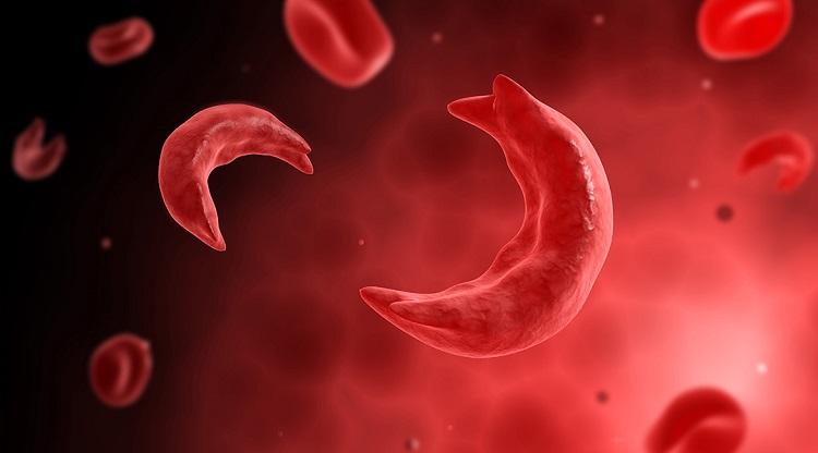 بیماری آنمی یا کم خونی داسی شکل چیست و چگونه مدیریت میشود؟
