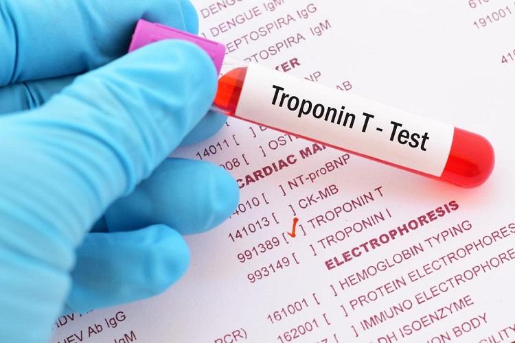 چگونه آزمایش تروپونین، آسیبهای قلبی را تشخیص میدهد؟