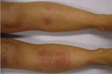 بیماری پوستی اریتم گرهی چیست