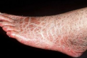What is Ichthyosis or severe skin dryness?