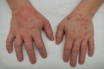 Familiarity with skin disease eczema inflammation and its types