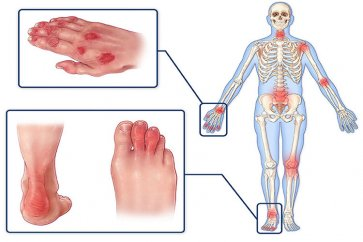 بیماری آرتریت پسوریاتیک Psoriatic arthritis چیست؟