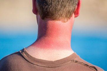 آفتاب سوختگی و راههای مقابله با آن