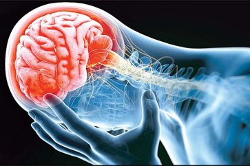 Brain surgery may help prevent stroke
