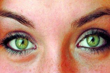 با انواع بیماریهای چشمو درمان آنها آشنا شوید