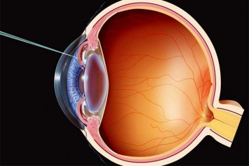 A review of eye surgeries, comparisons and perceptions of vision