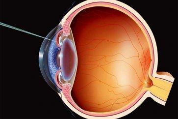 眼科手術,比較和視力感知的回顧