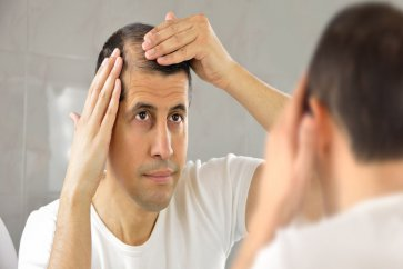 Hair loss and dysfunctions, along with comprehensive therapies