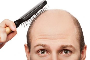 Learn more about baldness and its causes
