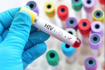 همه چیز درباره بیماری ایدز، علت، علائم و درمان