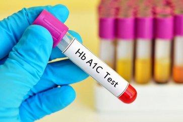 تست خونی برای  کنترل دیابت  یا همان تست A1C چیست؟