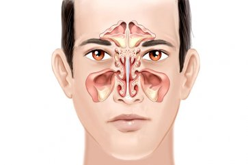 Homemade treatments and the miracle of sinusitis and respiratory infections