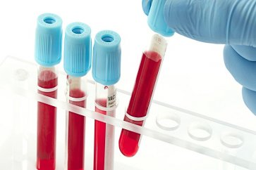 What is MCV in the blood test?