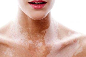 پیسی (Vitiligo) یا اختلال تولید رنگدانه چیست؟