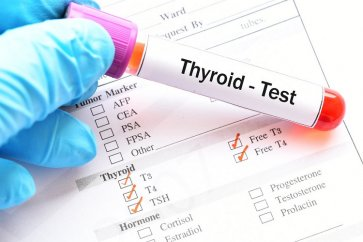 What is TSH test or thyroid stimulating hormone?