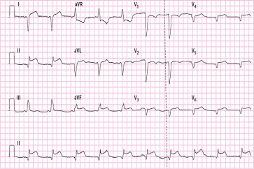 الکتروکاردیوگرافی یا نوار قلب چیست؟