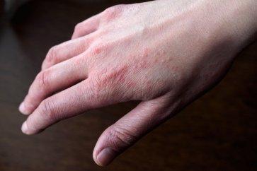 چه عاملی باعث ایجاد راش یا ضایعه پوستی در من میشود؟