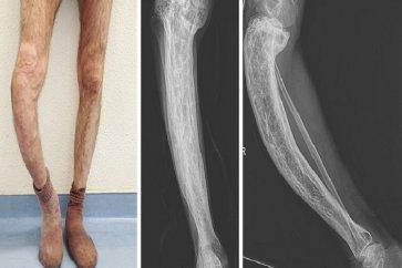 بیماری پاژه استخوانی (Paget s bone) را جدی بگیرید