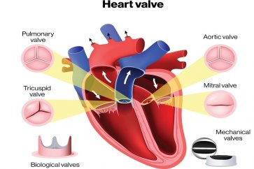 نارسایی دریچه میترال قلب چیست
