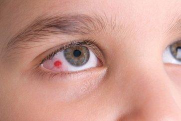 علت ایجاد لخته در چشم چیست و این حالت چگونه درمان میشود؟