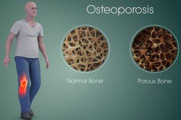 نگاهی جامع به پوکی استخوان و علل بروز آن به همراه روشهای جدید درمانی