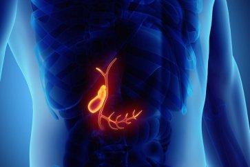 درباره پولیپ صفرا gallbladder polyp چه میدانید؟