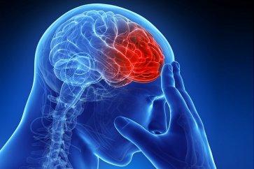 درباره سکته مغزی brain stroke، علائم و درمان آن بیشتر بدانید